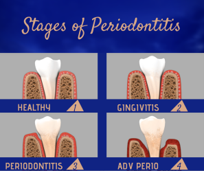 stages of perio